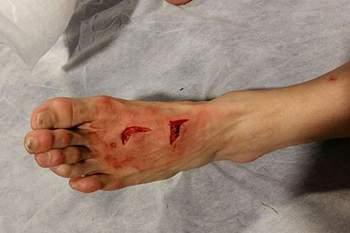 Herrera ficou com pé destroçado após o FC Porto-Juventus