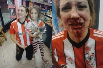 Adepta do River Plate agredida