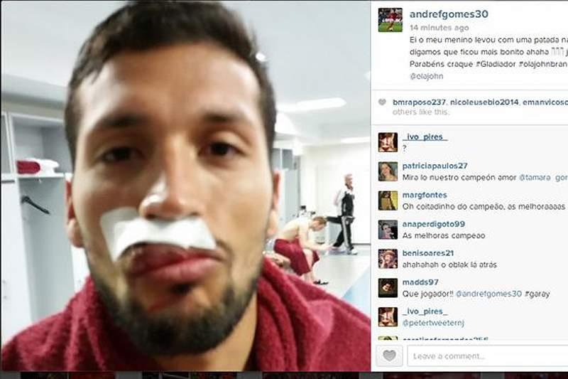 Garay com cara amassada depois de pontapé de Pogba