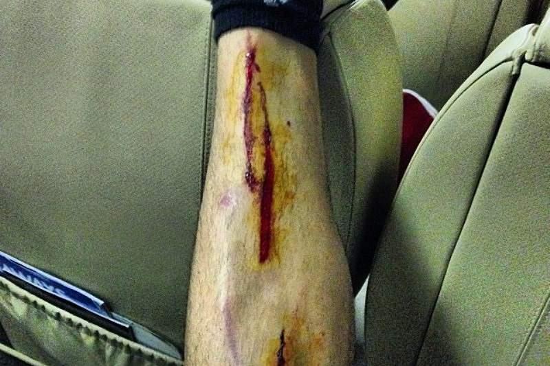 José Fonte mostra perna em mau estadi