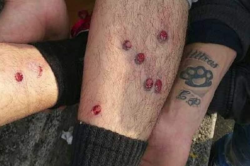 Dois polícias feridos e balas de borracha disparadas