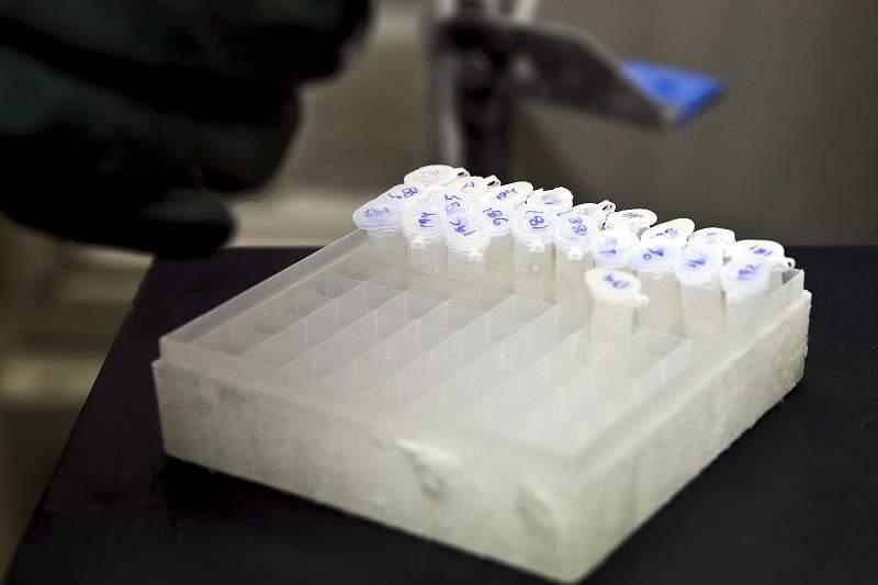 Legionella: Atuais condições climátéricas facilitam propagação da bactéria - Investigador