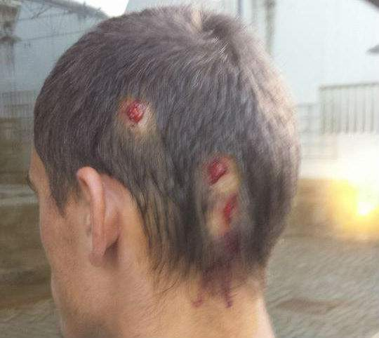 Adepto ferido no Guimaraes-Porto