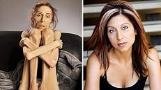 A 'guru' que diz curar a anorexia