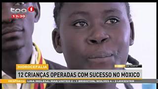 Hidrocefalia, 12 crianc?as operadas com sucesso no Moxico