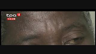 Glaucoma - Pacientes em Benguela pedem subvenc?a?o de medicamentos