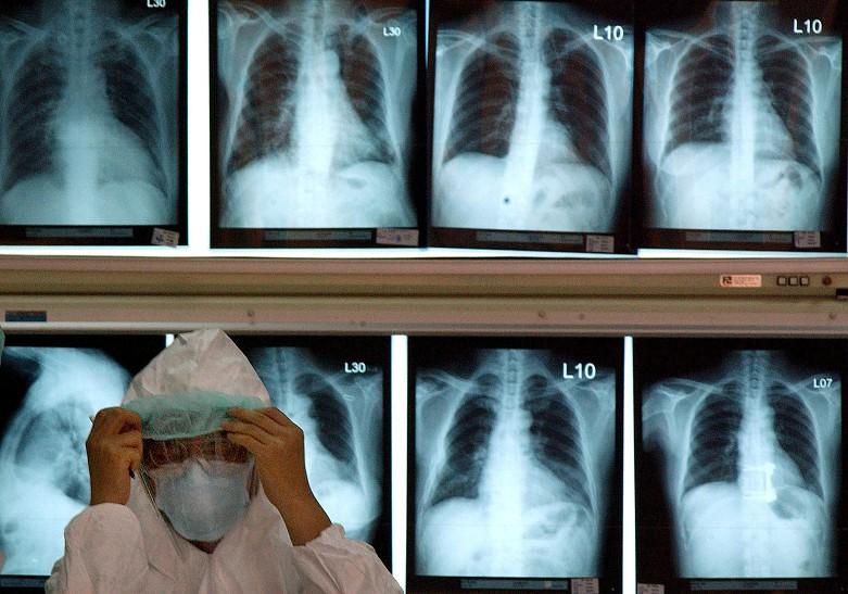 Resultado de imagem para Doenças respiratórias matam duas pessoas por hora em Portugal