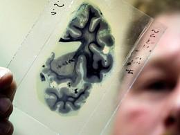 Dor periférica neuropática
