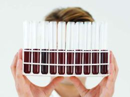O diagnóstico das anormalidades proteicas no sangue