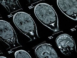 A cirurgia que trava a doença de Parkinson