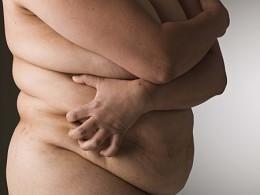 Gene que provoca obesidade ligado ao cancro de pele