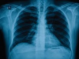 Cuba descobre vacina contra cancro do pulmão
