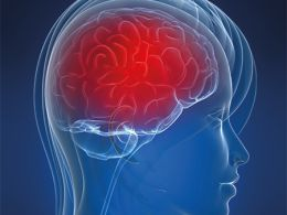 Neuromielite ótica