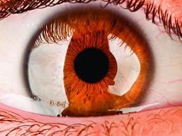 Glaucoma afeta 100 mil portugueses e é principal causa de cegueira em Portugal