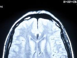 Ressonância magnética permite ver a dor