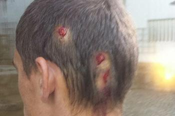 Um adepto do Vitória de Guimarães foi atingido, no D. Afonso Henriques, na cabeça com três balas de borracha disparadas pela PSP.
