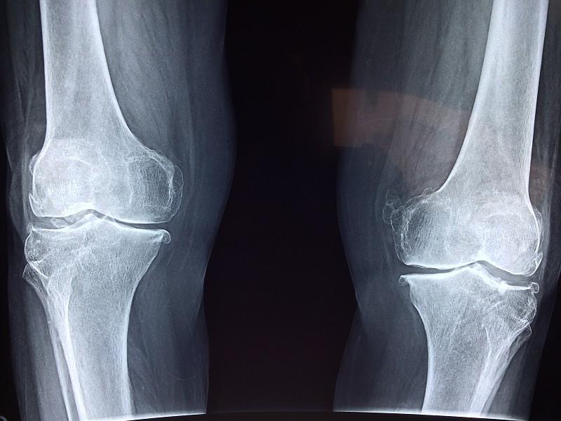 10 factos sobre a osteoporose que tem de saber