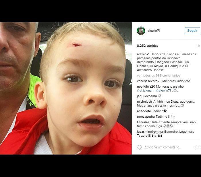 96e0f9a479bbd Filho de Ana Hickmann sofre acidente e leva pontos na cara ...