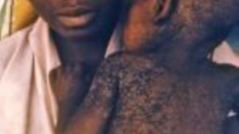 Angola desmente categóricamente centenas de mortes por sarampo na Lunda Norte