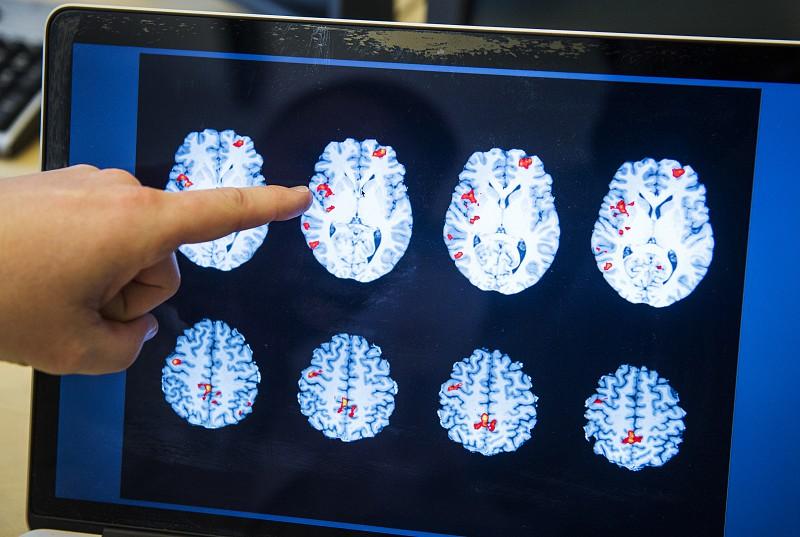 Implante no cérebro permitiu a tetraplégicos usar tablets com o pensamento