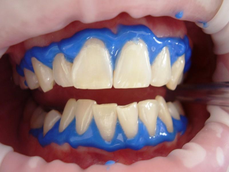 O Branqueamento Dentario E Um Procedimento Seguro Mas Nem Toda A