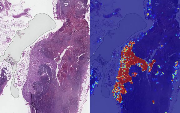 tek IA cancro de mama