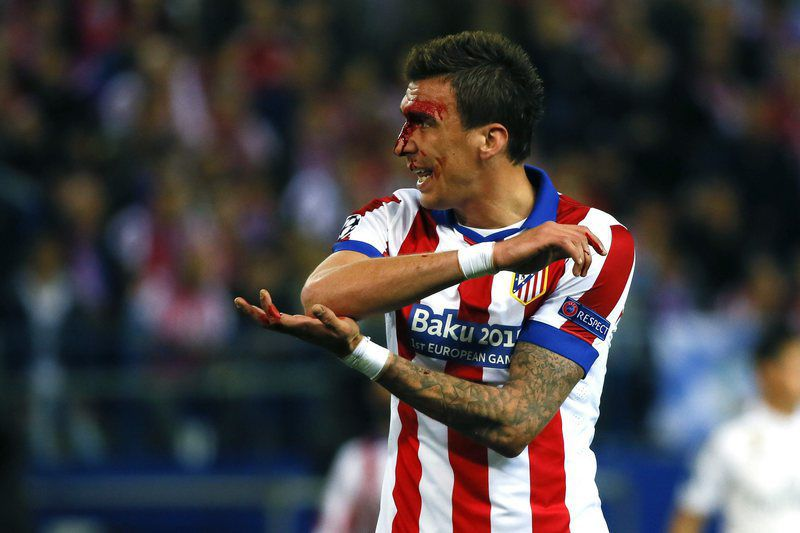 Croata Mandzukic queixa-se da cotovelada • epa04704729 Atletico Madrid's Croatian striker Mario Mandzukic bleeds during the UEFA Champions League quarter final first leg soccer match between Atletico Madrid and Real Madrid at Vicente Calderon stadium, in Madrid, Spain, 14 April 2015. • EPA/JuanJo Martin