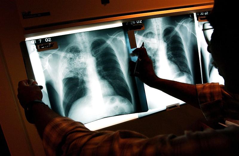 Cientistas descobrem no veneno de escorpião antibiótico contra tuberculose
